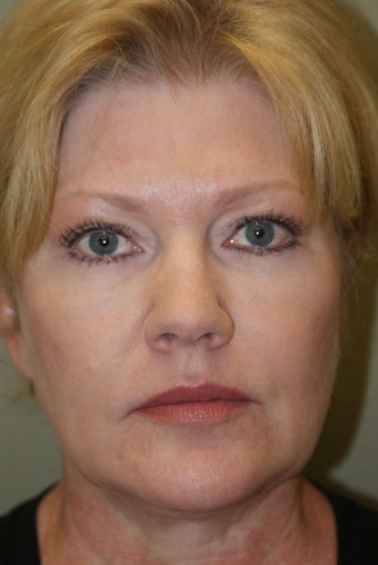 53 year old female ~ Neck Lift