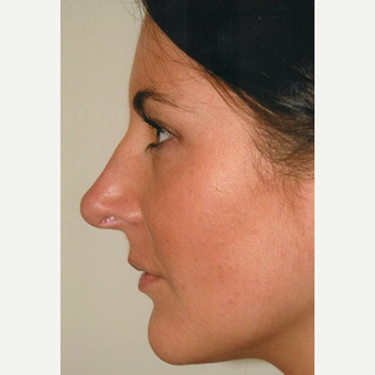 25-34 year old woman treated with Rhinoplasty after 3406234