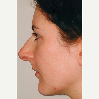 25-34 year old woman treated with Rhinoplasty before 3406234