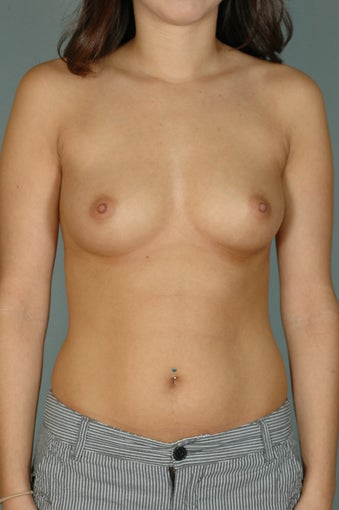 Subpectoral Breast Augmentation w/Mentor Moderate Plus Profile Saline implants before 481262