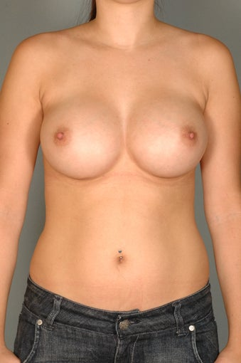 Subpectoral Breast Augmentation w/Mentor Moderate Plus Profile Saline implants after 481262