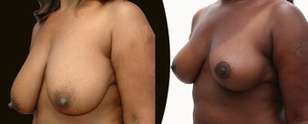 African American Breast Reduction before 1141925