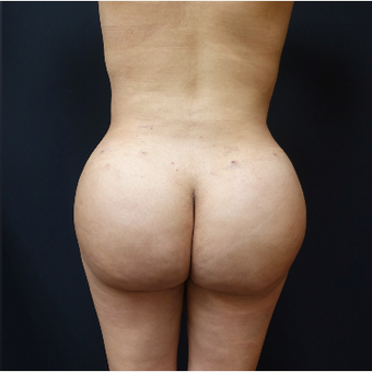 25-34 year old woman treated with Power-Assisted Liposuction (PAL) after 3286496