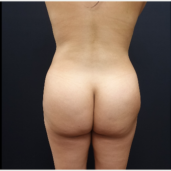 25-34 year old woman treated with Power-Assisted Liposuction (PAL) before 3286496