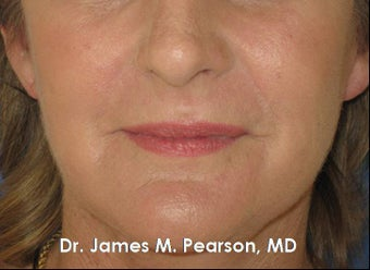 Perioral Rejuvenation after 910412