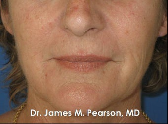 Perioral Rejuvenation before 910412