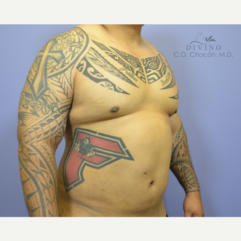 35-44 year old man treated with Male Breast Reduction after 3391765