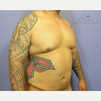 35-44 year old man treated with Male Breast Reduction before 3391765