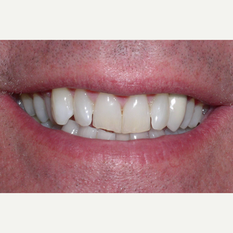 65-74 year old man treated with Da Vinci Veneers before 3448727