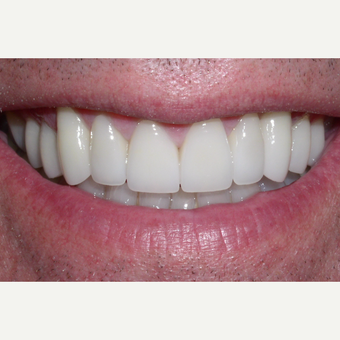 65-74 year old man treated with Da Vinci Veneers after 3448727