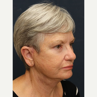 65-74 year old woman treated with Facelift after 3343984