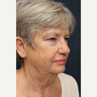 65-74 year old woman treated with Facelift before 3343984