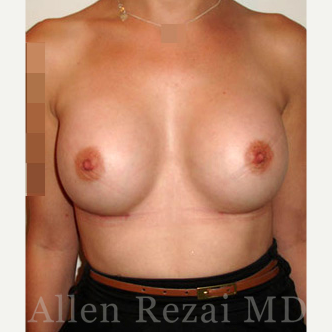 Bilateral Breast Augmentation  - Pre- & 6 Weeks  Post-op after 3487508