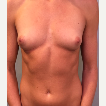 25-34 year old woman treated with Breast Augmentation before 3530447