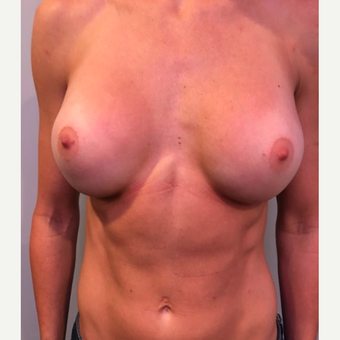 25-34 year old woman treated with Breast Augmentation after 3530447