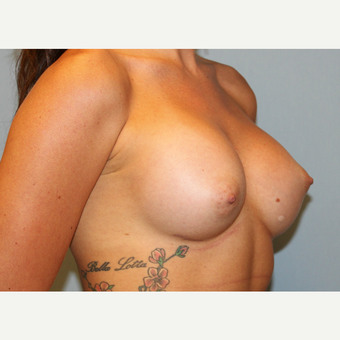 25-34 year old woman treated with Breast Augmentation after 3570386
