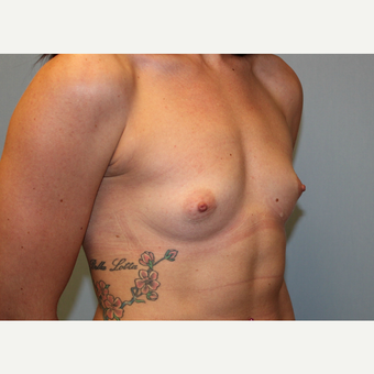 25-34 year old woman treated with Breast Augmentation before 3570386