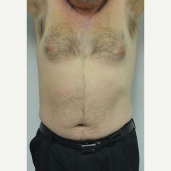 55-64 year old man treated with Male Breast Reduction before 3054074