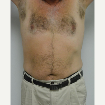 55-64 year old man treated with Male Breast Reduction after 3054074