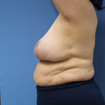 65-74 year old woman treated with Breast Reduction after 3087415