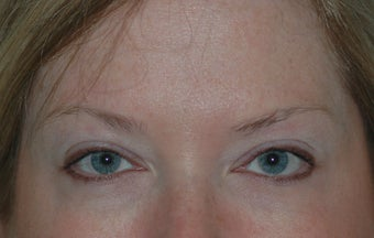 Botox Treatment after 94106