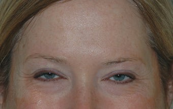 Botox Treatment before 94106