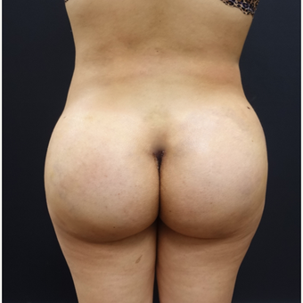 18-24 year old woman treated with 548cc Butt Implants and 400cc of fat transfer after 2764744
