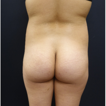 18-24 year old woman treated with 548cc Butt Implants and 400cc of fat transfer before 2764744