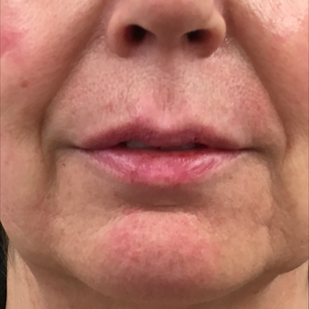 55-64 year old woman treated with Volbella Lip Filler after 3808891