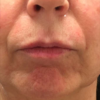 55-64 year old woman treated with Volbella Lip Filler before 3808891