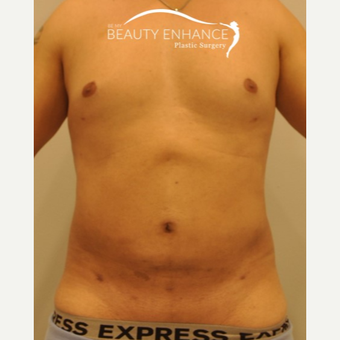 Liposuction after 3377522