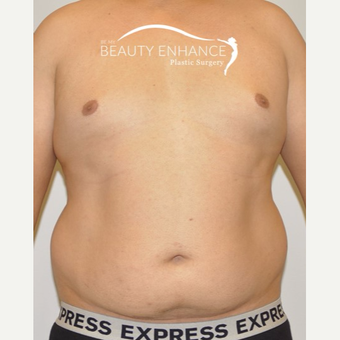 Liposuction before 3377522