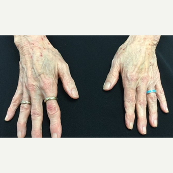 75 and up year old woman treated with 2 syringes of Radiesse before 3784352
