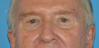 65-74 year old man treated with Facelift, Eyelid Surgery, and Necklift before 3065382
