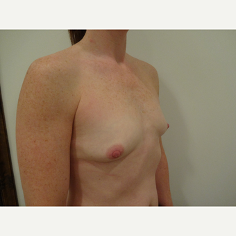 35-44 year old woman treated with Breast Implants before 3765796