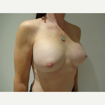 35-44 year old woman treated with Breast Implants after 3765796