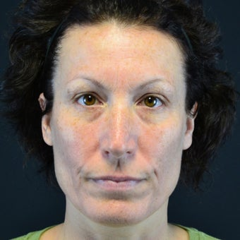 45-54 year old woman treated with Restylane before 2255617