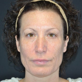 45-54 year old woman treated with Restylane after 2255617