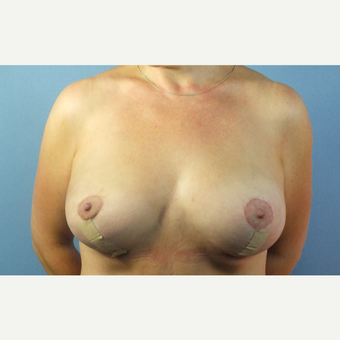 35-44 year old woman treated with Breast Fat Transfer after 3124118