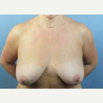 35-44 year old woman treated with Breast Fat Transfer before 3124118