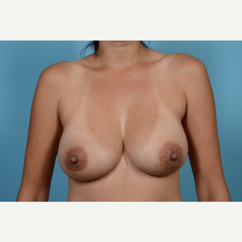 35-44 year old woman treated with Breast Augmentation after 3089250