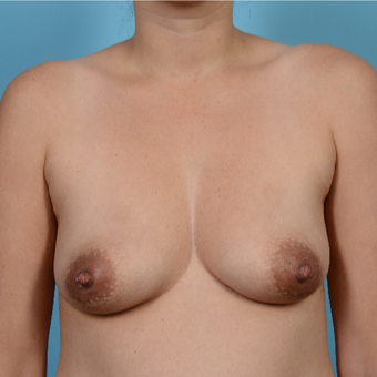 35-44 year old woman treated with Breast Augmentation before 3089250