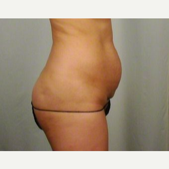 35-44 year old woman treated with Tummy Tuck before 3026467