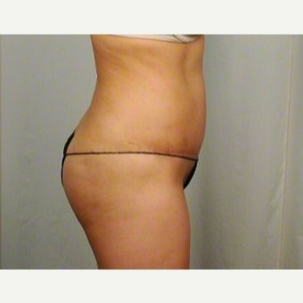 35-44 year old woman treated with Tummy Tuck after 3026467