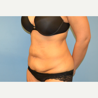 35 year old woman treated with Tummy Tuck before 3106153