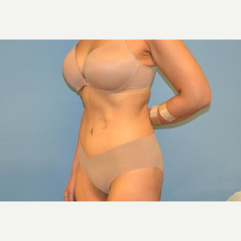 35 year old woman treated with Tummy Tuck after 3106153