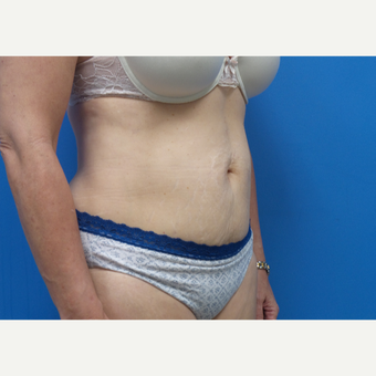 45-54 year old  female treated with Liposuction after 3376259