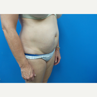 45-54 year old  female treated with Liposuction before 3376259