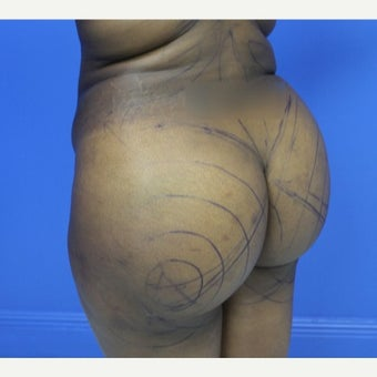 18-24 year old woman treated with Brazilian Butt Lift 1790639