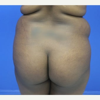 18-24 year old woman treated with Brazilian Butt Lift before 1790639